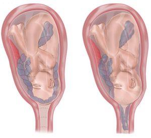 左侧为隐性脐带脱垂,右侧为显性脐带脱垂
