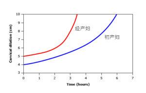 新产程曲线